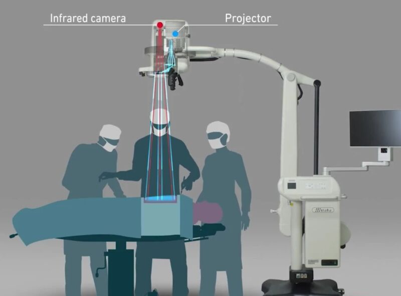 This Device Projects Medical Imagery Onto Patients' Bodies